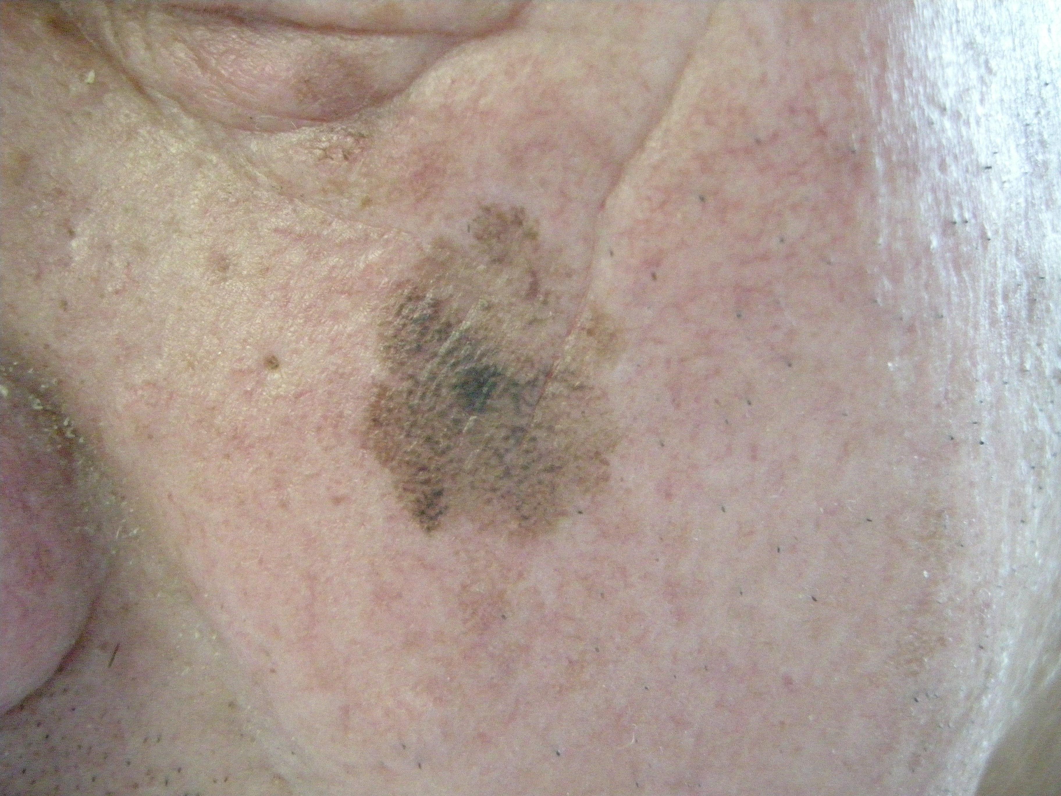 Cosmodermis Schwarzer Hautkrebs Melanom