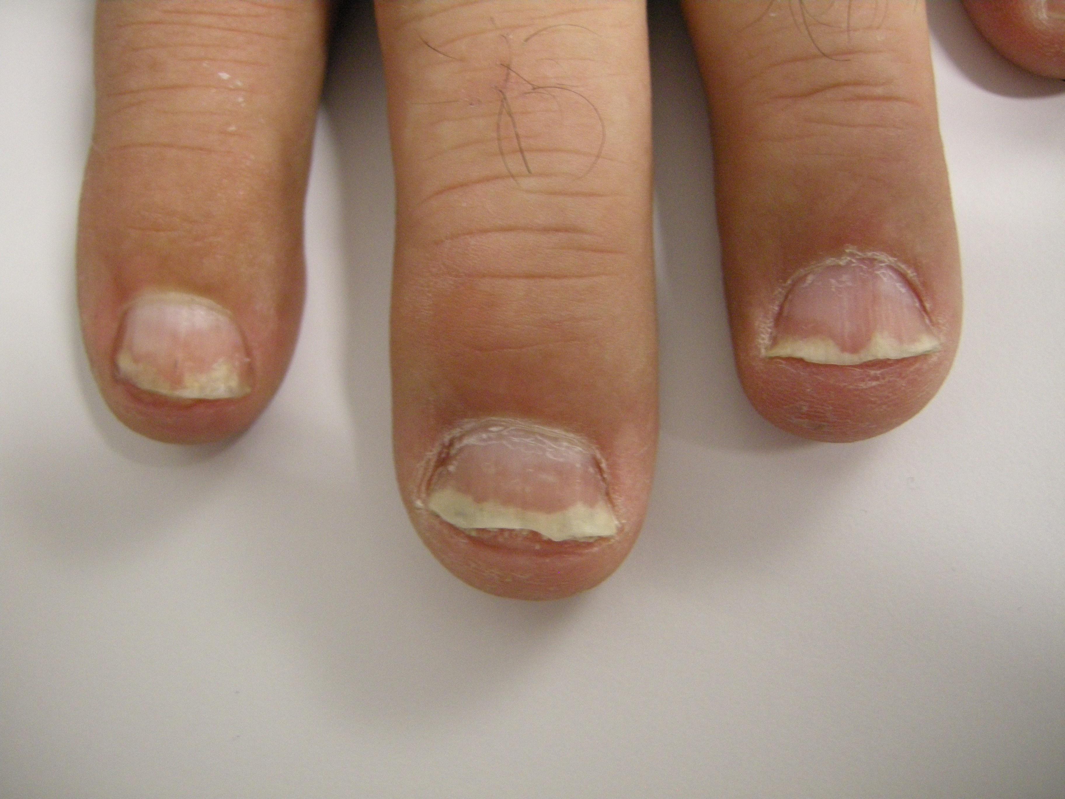 Wie den gedrückten Nagel zu behandeln